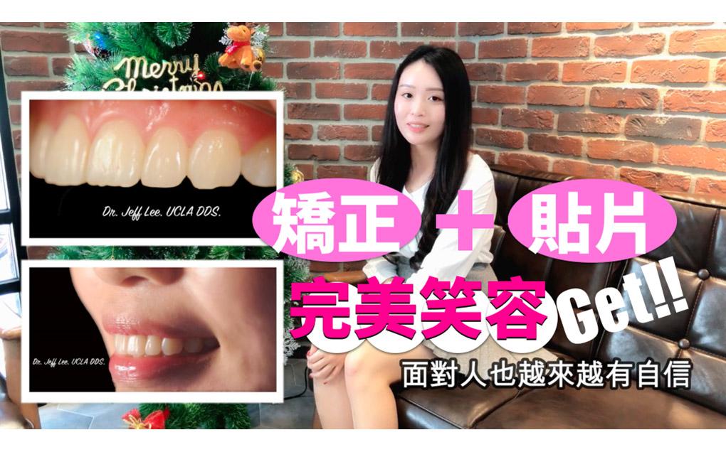 矯正牙套+貼片完美改變牙齒凌亂