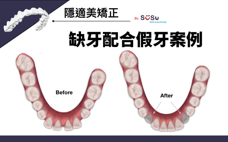 隱適美矯正缺牙配合假牙製作