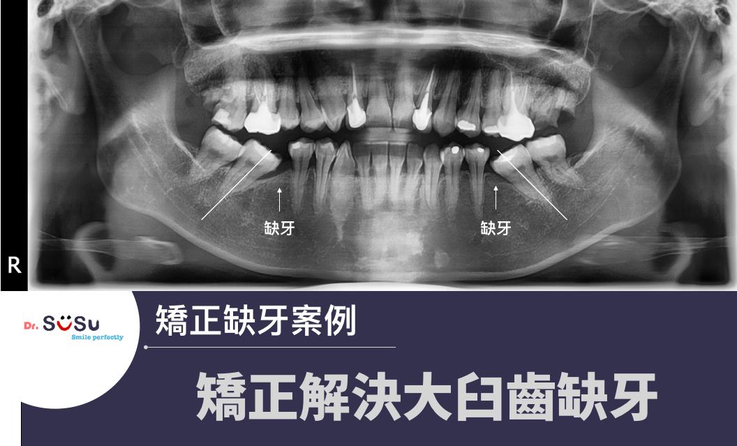 大臼齒缺失處理方式