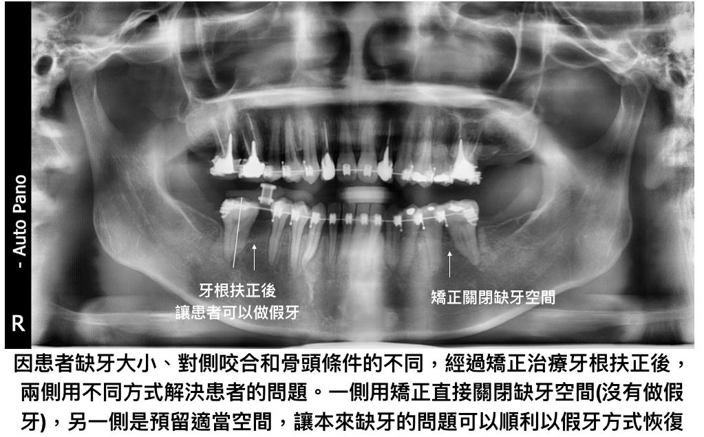 矯正缺牙關閉空間配合假牙