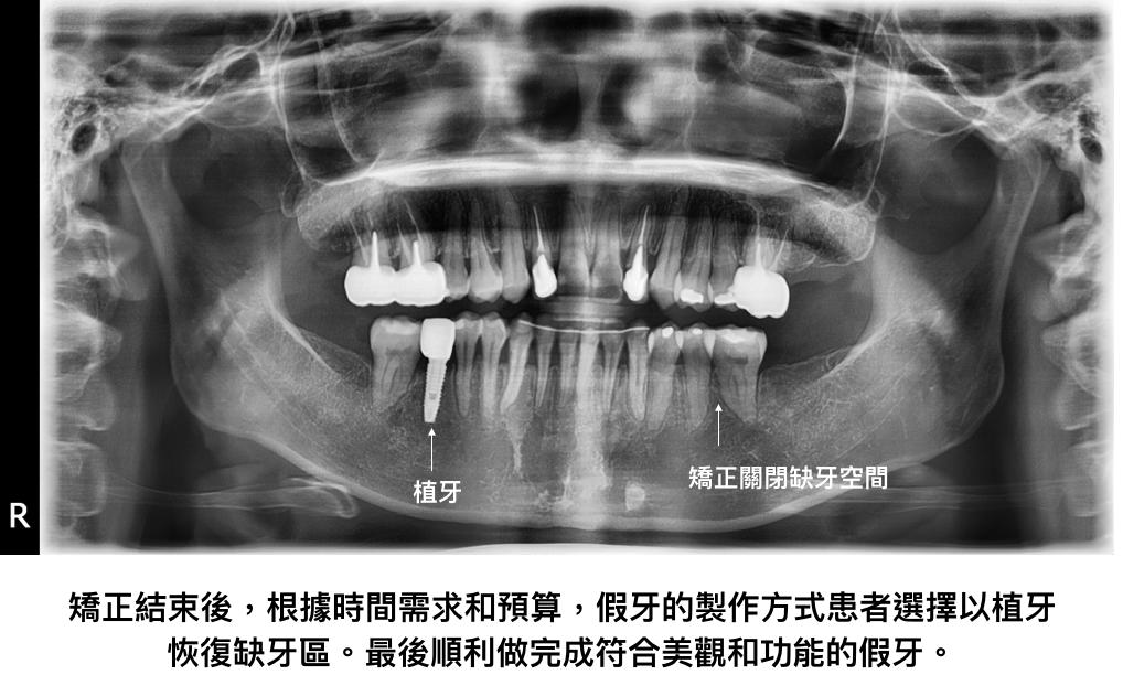 矯正配合假牙