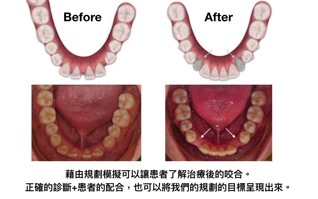 隱適美治療缺牙案例
