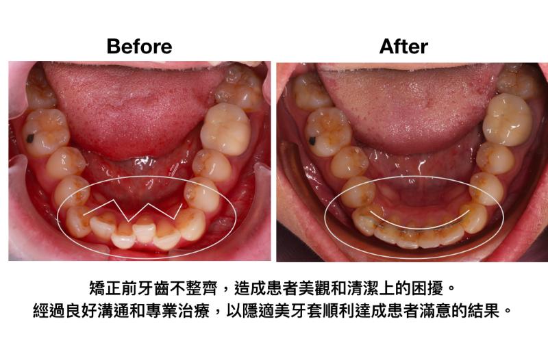 隱適美案例改善牙齒亂