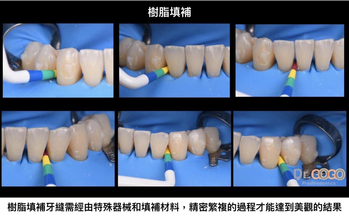 矯正後牙縫填補