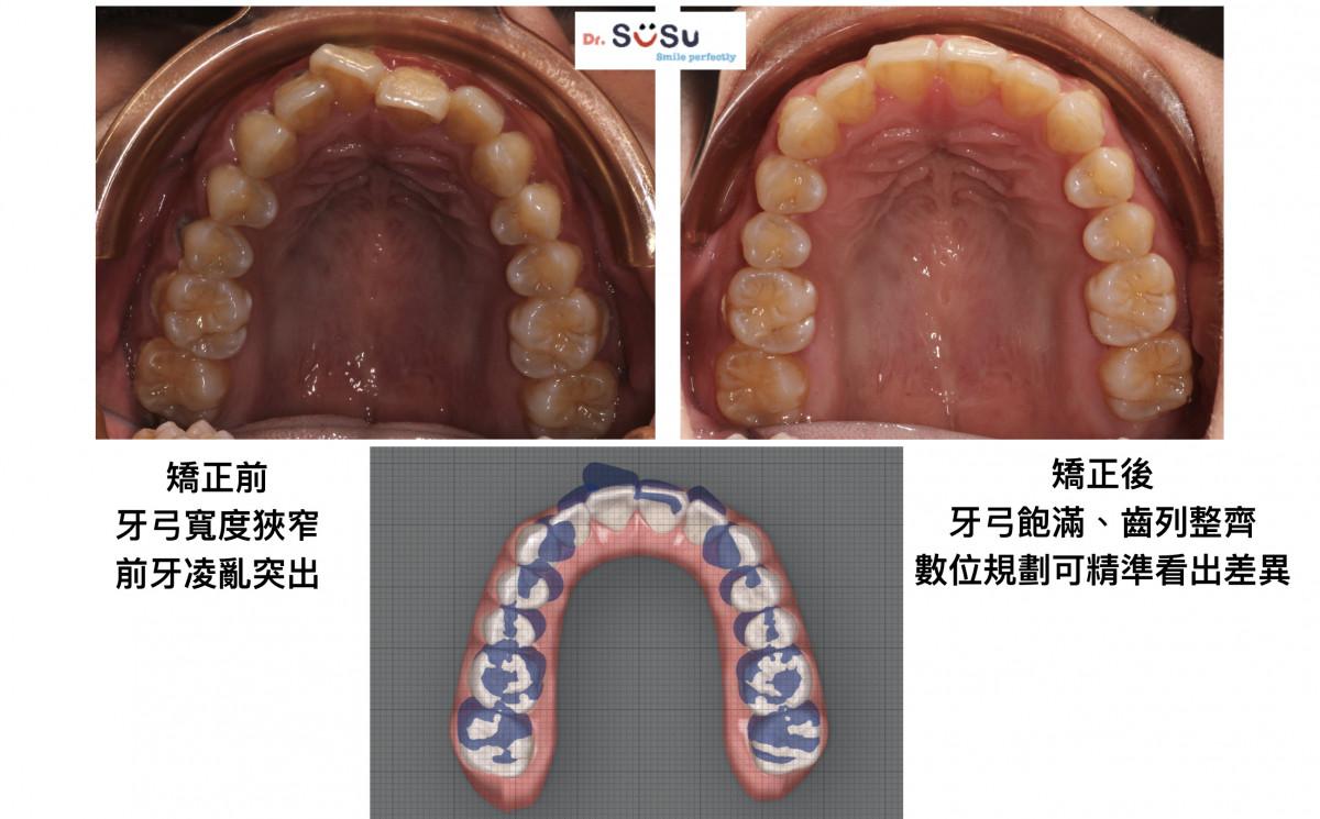 隱適美案例牙齒亂