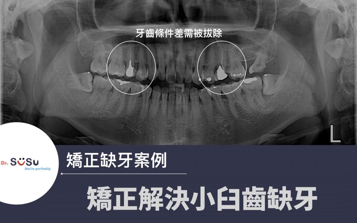 矯正缺牙假牙